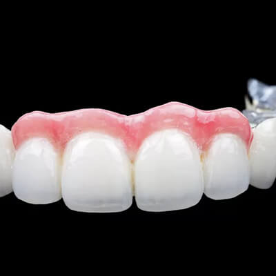 Porcelanowe mosty dentystyczne