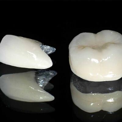 Zdjęcie korony porcelanowej